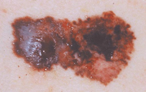 Dấu hiệu đầu tiên của ung thư tế bào sắc tố da