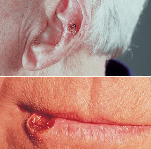 Ung thư tế bào gai ở da thường gặp ở môi, lỗ tai